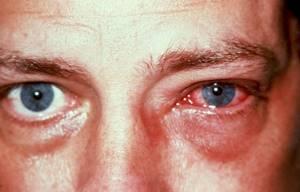 эписклерит у детей симптомы и лечение