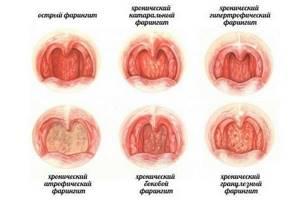 фаринголарингит симптомы и лечение