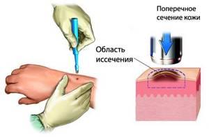 фотодерматит симптомы и лечение у детей