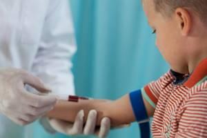 гепатит с симптомы у детей лечение