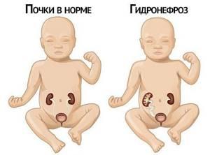 гидронефроз почки симптомы лечение у детей