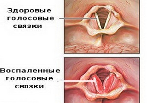 гипертрофический ларингит симптомы и лечение