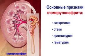 гломерулонефрит у детей симптомы причины лечение