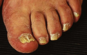 грибковые заболевания кожи симптомы и лечение на ногах
