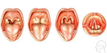 грибок горла симптомы лечение у детей