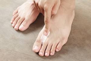 грибок кожи на ногах симптомы и лечение