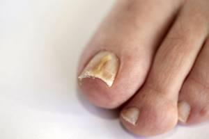 грибок на ногах симптомы и лечение в домашних условиях