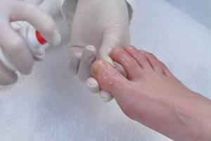 грибок ногтей на ногах начальная стадия симптомы и лечение