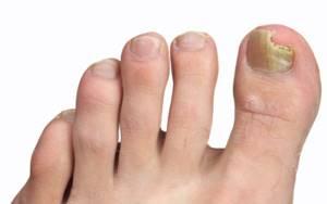 грибок ногтей на ногах симптомы лечение народными средствами