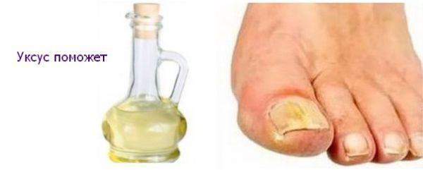 грибок ногтей на ногах симптомы лучшие рецепты лечения