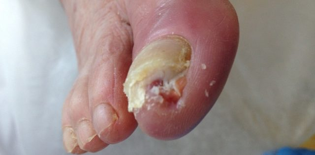 грибок ногтей на ногах симптомы причины лечение