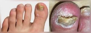 грибок ногтя на большом пальце ноги лечение симптомы