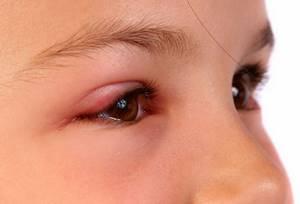 халязион у детей симптомы и лечение