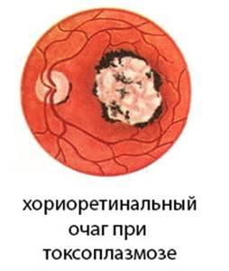 хориоретинит у детей симптомы лечение