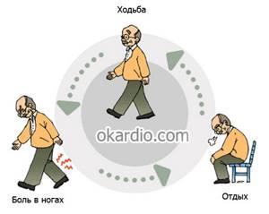 хромота левой ноги причины симптомы лечение
