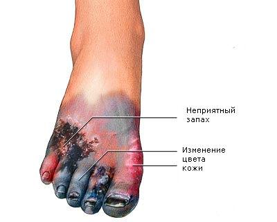 интоксикация при гангрене ноги симптомы и лечение