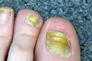 как передается грибок на ногах пути заражения симптомы и лечения
