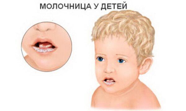 кандида у детей симптомы и лечение
