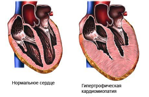 кардиопатия у детей симптомы и лечение