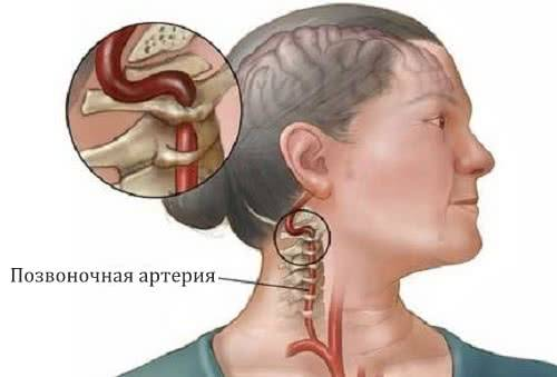 кашель и грудной остеохондроз симптомы и лечение