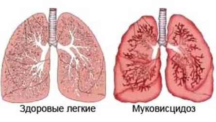 кашель симптомы и лечение