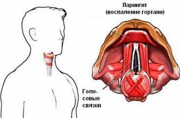 катаральный ларингит симптомы и лечение