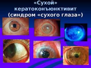 кератоконъюнктивит симптомы и лечение у детей