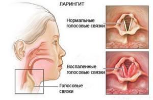ларингит без температуры симптомы и лечение