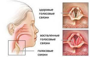 ларингит и трахеит симптомы и лечение у взрослых