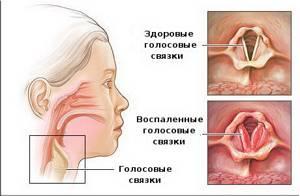 ларингит причины симптомы лечение