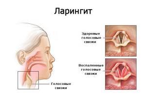 ларингит симптомы и лечение лекарства