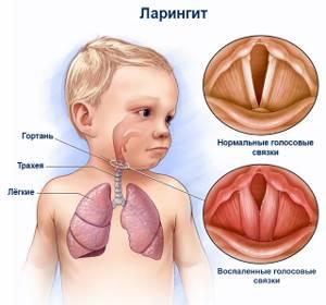 ларингит симптомы и лечение у новорожденных