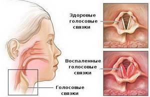 ларингит симптомы и лечение у взрослых лекарства