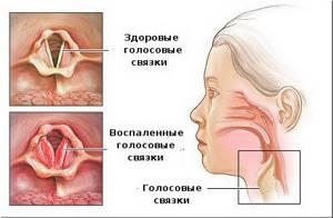 ларингит симптомы и лечение у взрослых осложнения