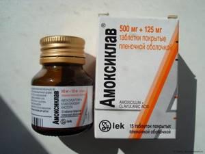 ларингит симптомы лечение антибиотики