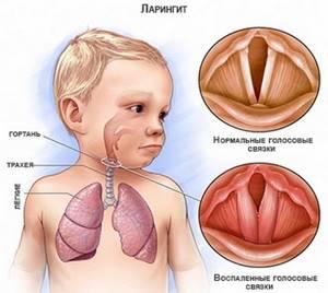 ларинготрахеит у детей симптомы причины лечение