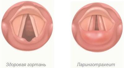 ларинготрахеит у взрослых симптомы и лечение народными