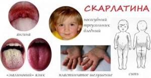 лечение и симптомы скарлатины у детей
