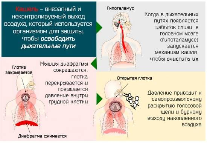лечение первых симптомов кашля