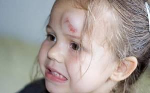 легкое сотрясение головного мозга у ребенка симптомы и лечение