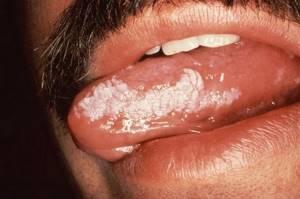 лейкоплакия у детей симптомы и лечение