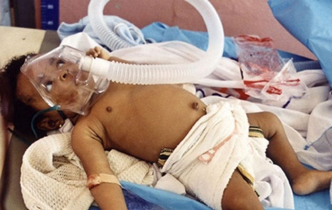 малярия у детей симптомы и лечение