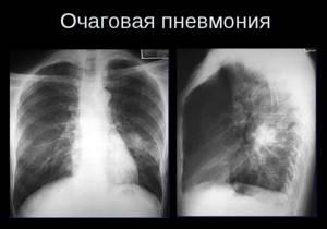 мелкоочаговая пневмония у детей симптомы лечение