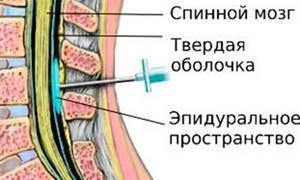 миелодисплазия у детей симптомы и лечение