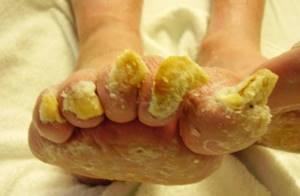 микоз ногтей на ногах симптомы и лечение