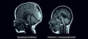 микроцефалия у детей симптомы и лечение