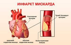 микроинфаркт на ногах симптомы и последствия лечение