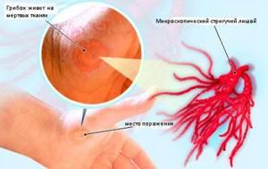 микроспория у детей симптомы лечение