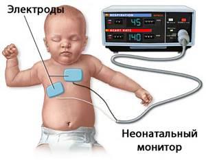 миокардит симптомы лечение у детей