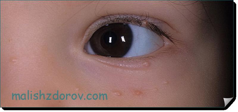 моллюск у детей симптомы и лечение